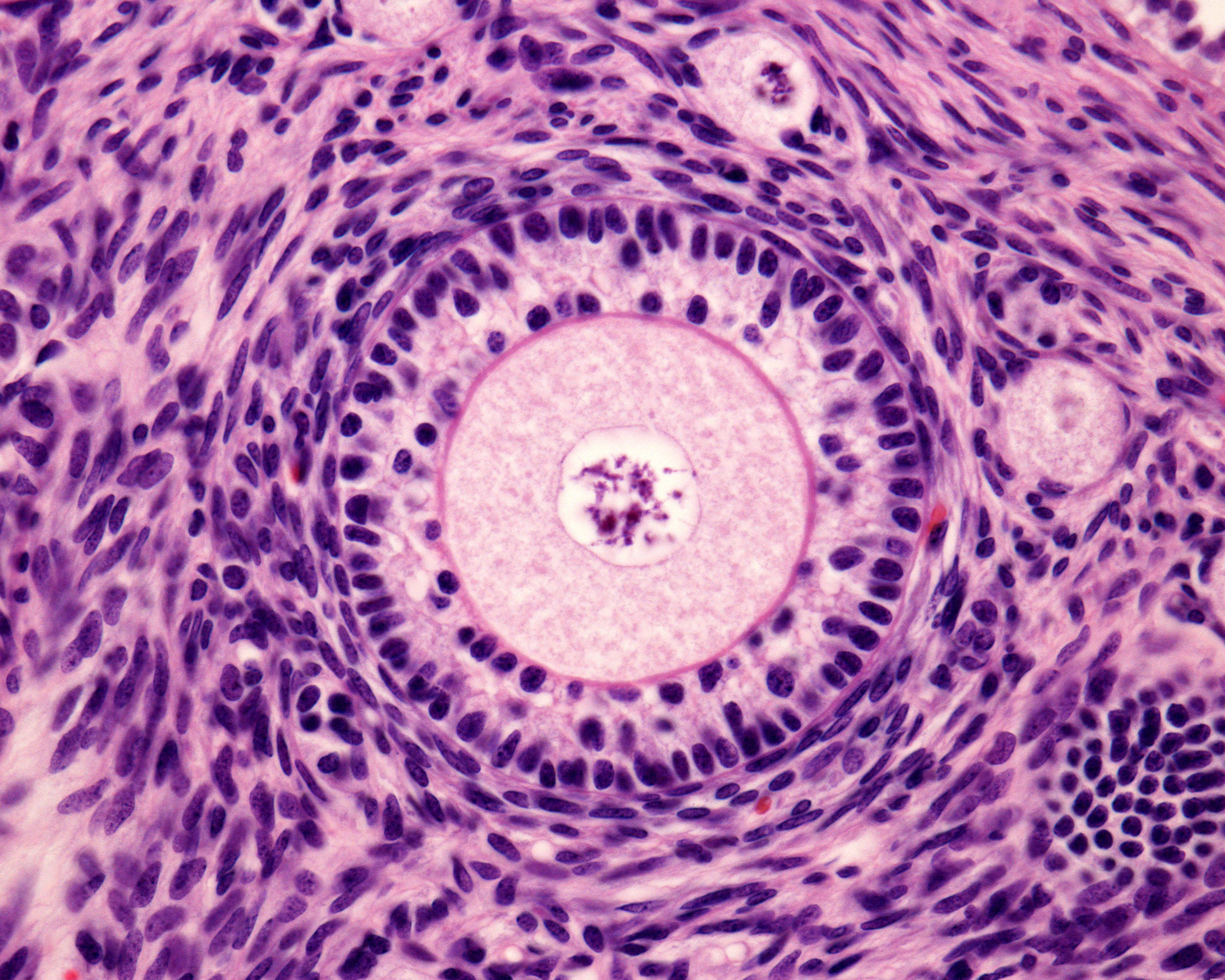IVF Follicles: How Many Do You Need for Success?